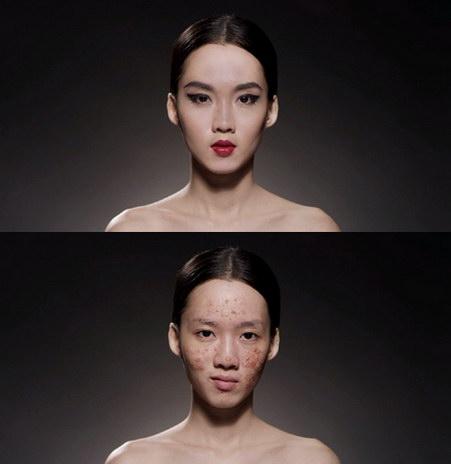 face for sale pornkasem clinic 3-vert 2