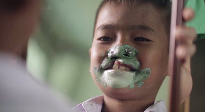 operation smile bbdo (2)